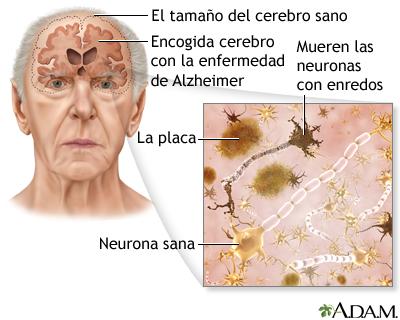 1 Alzheimer Glutation Immunocal